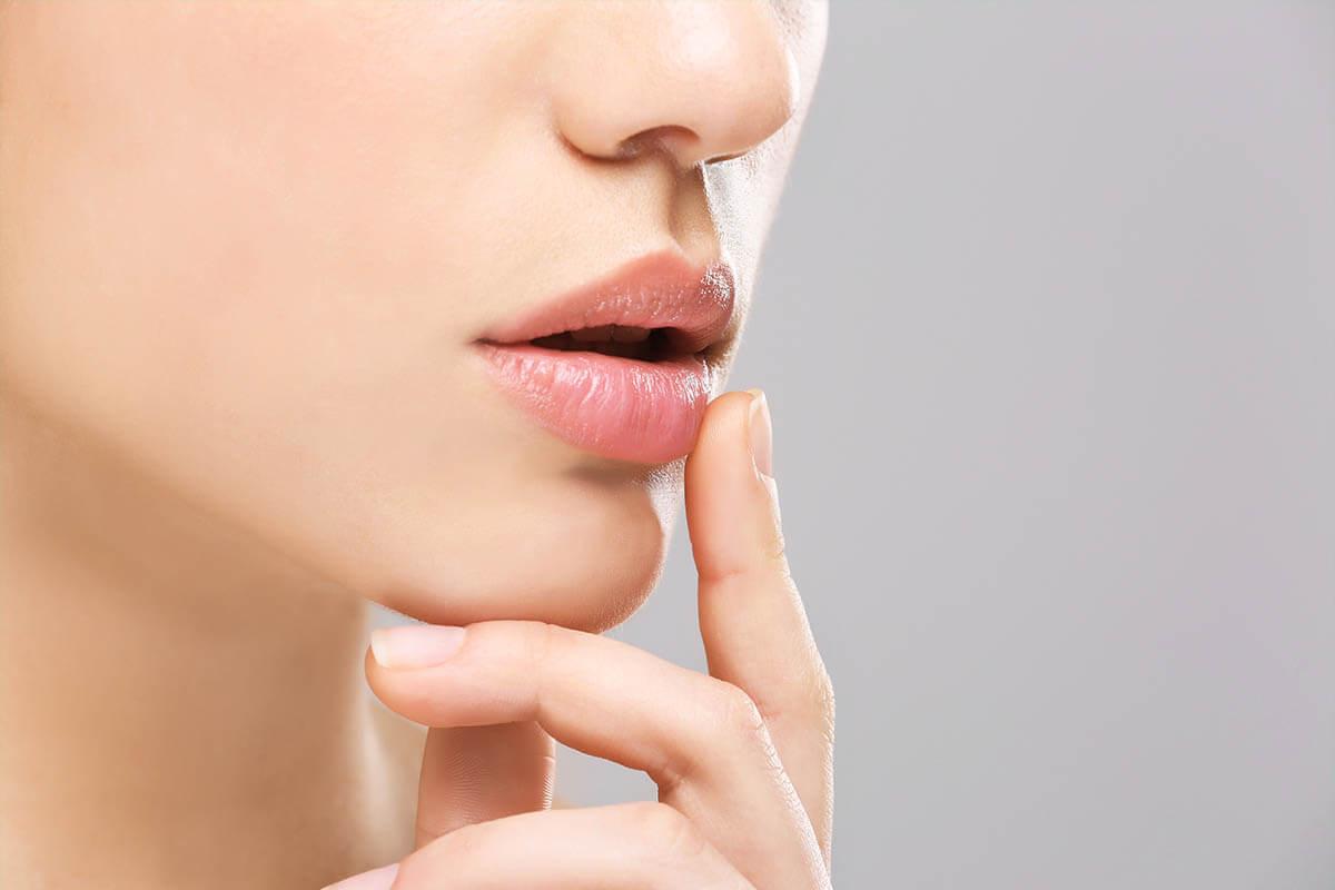 5 Tipps gegen Herpesbläschen