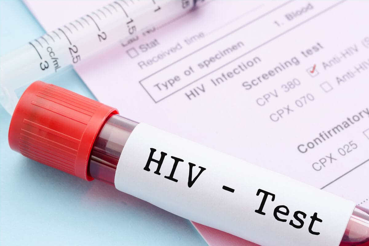 Wann zum HIV-Test?