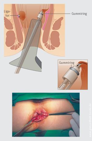Die lange analthrombose wie heilung dauert Lippenherpes: Dauer,
