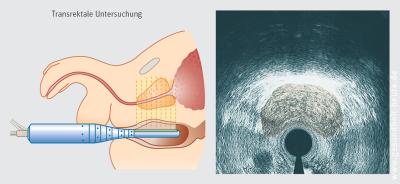 Népi gyógyszerek kezelése a prostatitis féreghernyóból