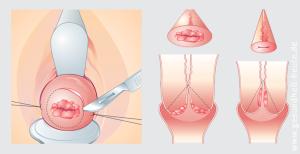 Nach gebärmutterentfernung schwimmen Gebärmutterentfernung: Oft